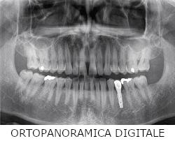 ortopanoramiche-digitali