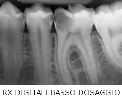 radiografie-digitali